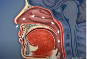 link to YouTube video of airway orthodontics